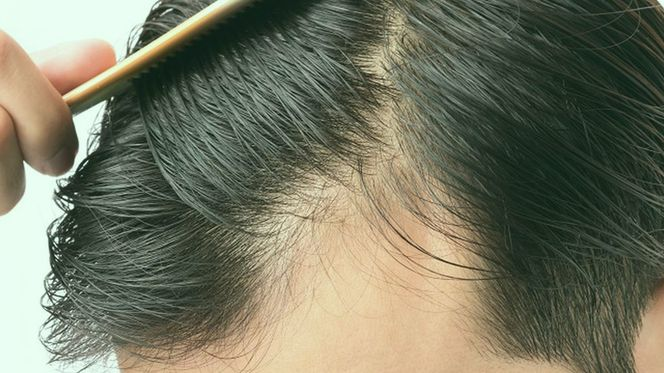 Which Types of Hair Loss Can Be Treated?